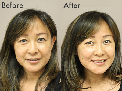 before_after_front.jpg