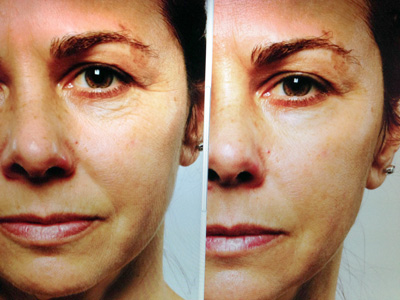 400R_Rapid Collagen Infusion- before and after.jpg