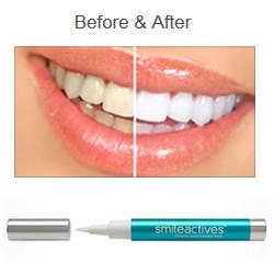 歯のホワイトニング新技術がペンタイプに♪
