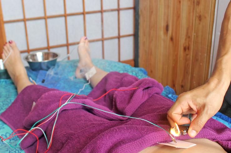 ジュジュべの鍼灸治療、アーシング