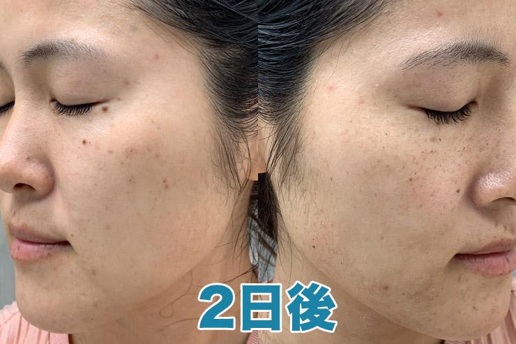 【2日後】前日と肌の状態は変わらず。スッピンだとシミやソバカスが目立ちますが、化粧をすると隠れるレベルです。