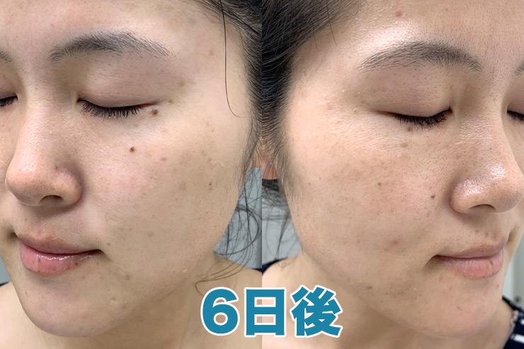 【6日後】気になっていた左頬の大きなシミが取れました!!!